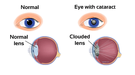 Ncert Solutions For Class 10 Science The Human Eye And The